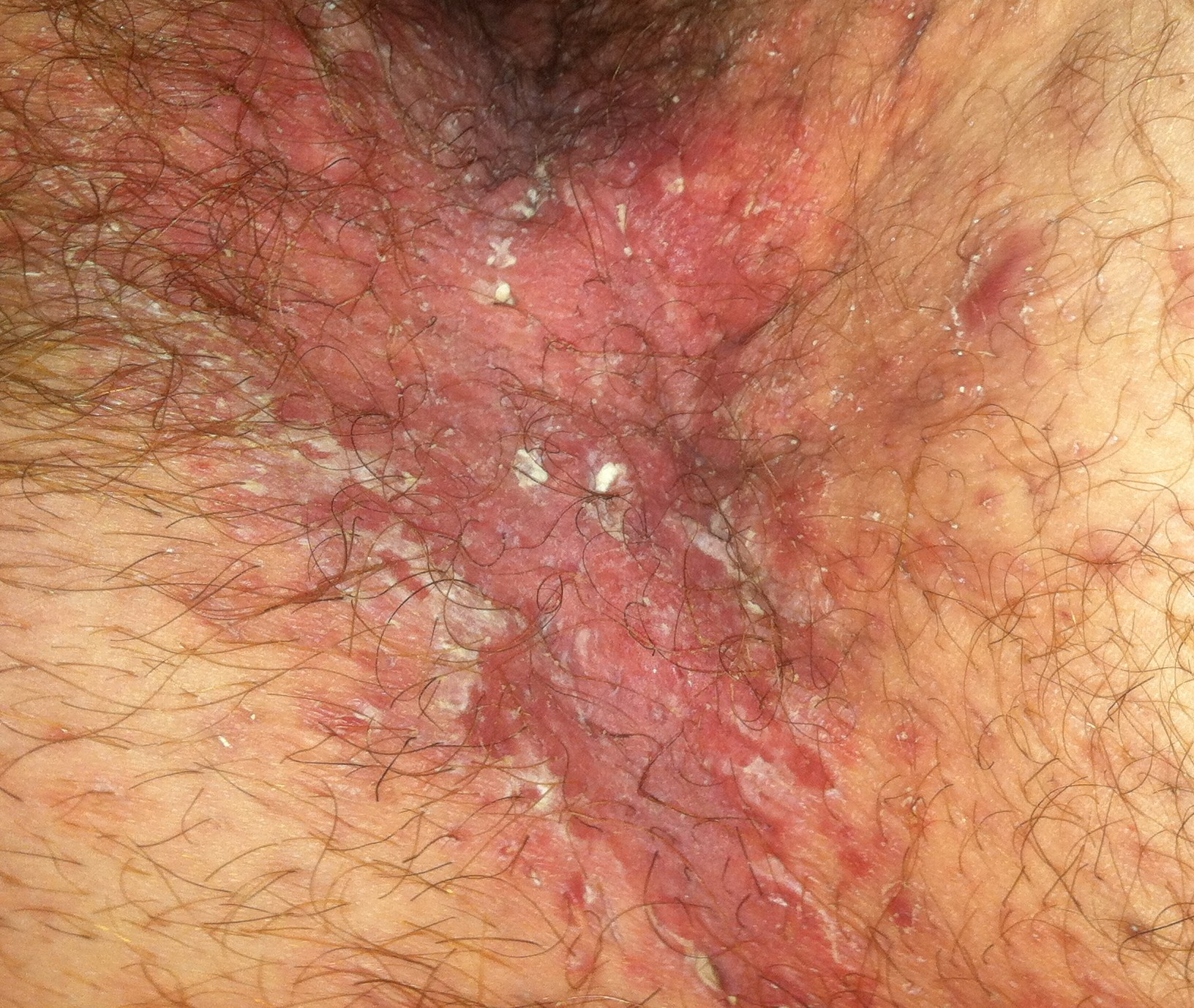 Rash On My Inner Thigh